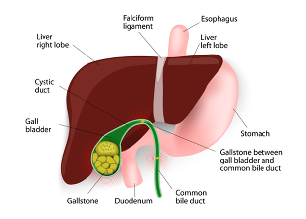 Gallstone emergencies - LGSC