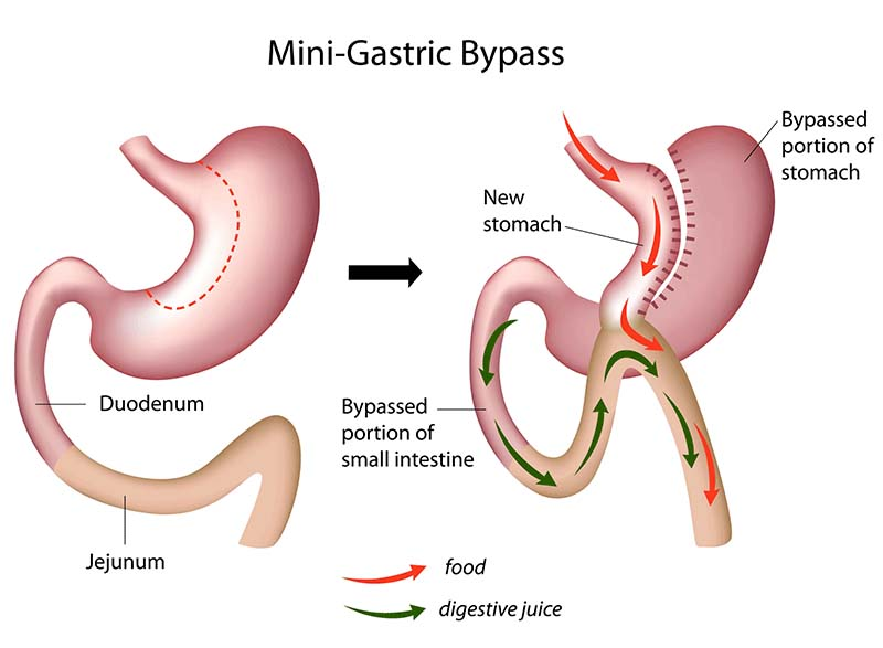 Mini Gastric Bypass Surgery - LGSC