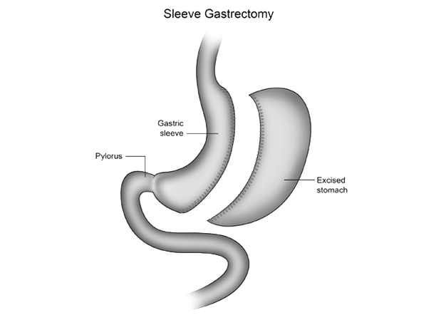 Sleeve Gastrectomy Operation - LGSC